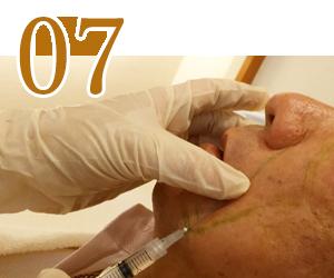 培養した細胞を注入 神戸三宮フォーシーズンズ美容皮膚科クリニック