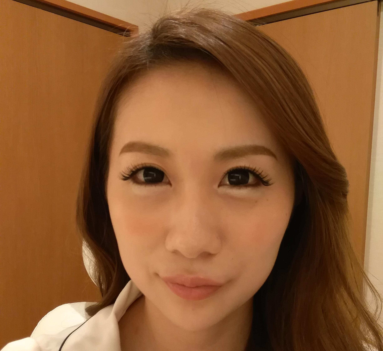 顎(アゴ)へのヒアルロン酸注入(正面) After