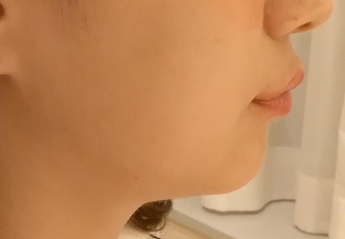 顎(アゴ)へのヒアルロン酸注入(横) Befoer