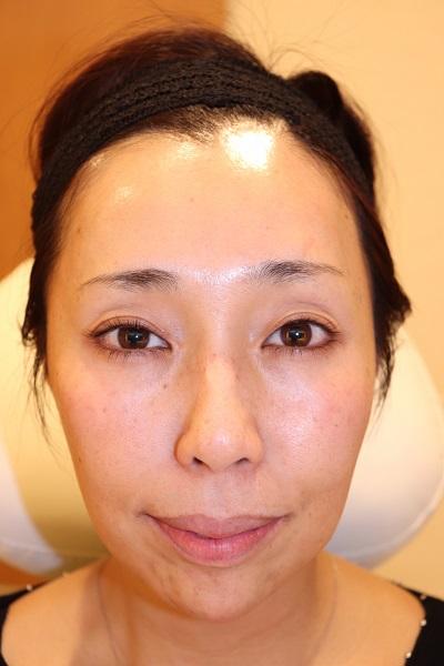 目の下、ほうれい線、こめかみ、顎(アゴ)へのヒアルロン酸注入 After