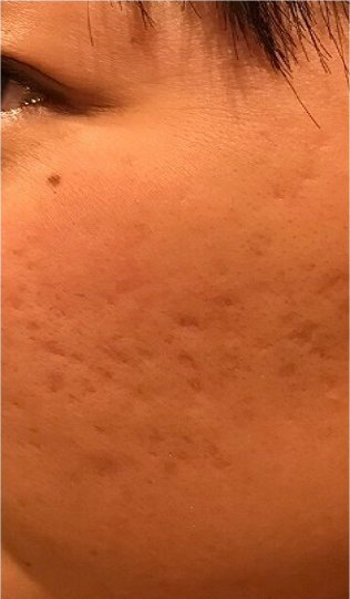 PRP皮膚再生医療before