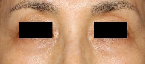 目の下クマ(治療後)