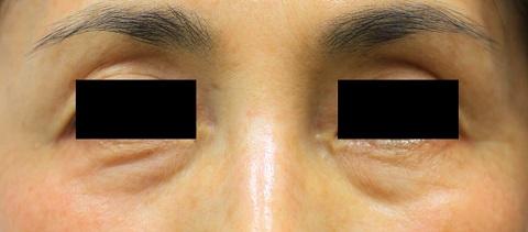 目の下クマ(治療前)