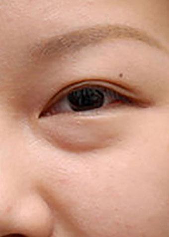 目の下のくぼみ(治療前)