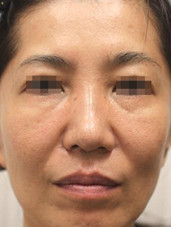 顔全体(治療前)