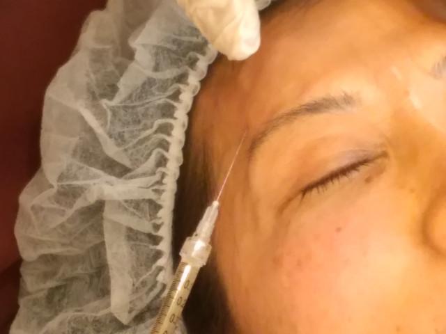 肌再生治療の紹介