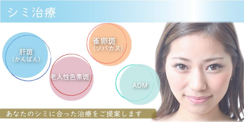 シミ治療 肝斑・老人性色素班・雀卵斑(ソバカス)・ADMなどあなたのシミに合った治療をご提案します