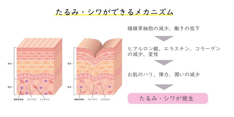 たるみ・シワは、綿維芽細胞の減少、働きの低下によりヒアルロン酸・エラスチン・コラーゲンが減少、編成し、お肌のハリ、弾力、潤いが減少する事によって出来ます。