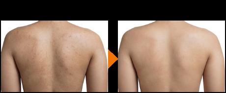 背中の肌再生イメージ