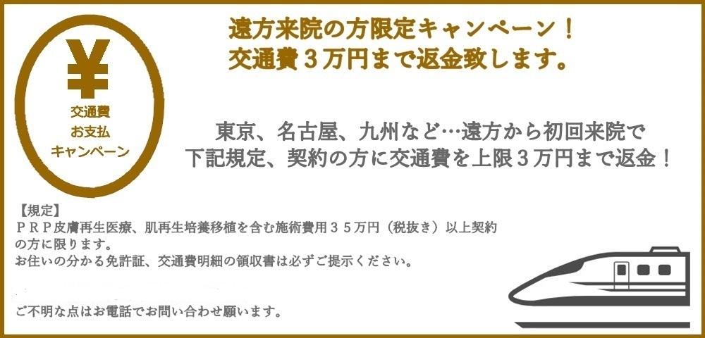 交通費3万円まで負担キャンペーン