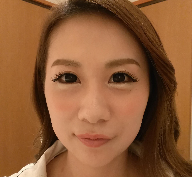 顎(アゴ)へのヒアルロン酸注入(正面) Before