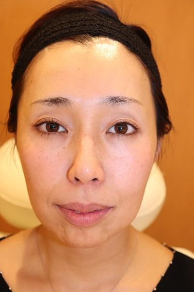 目の下、ほうれい線、こめかみ、顎(アゴ)へのヒアルロン酸注入 Before