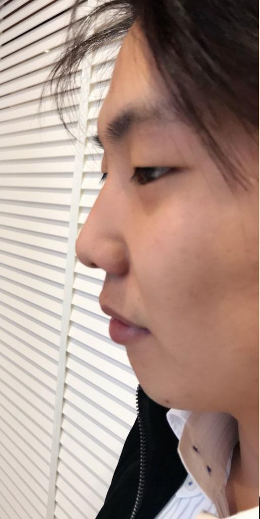 顎(アゴ)と鼻へのヒアルロン酸注入 Before