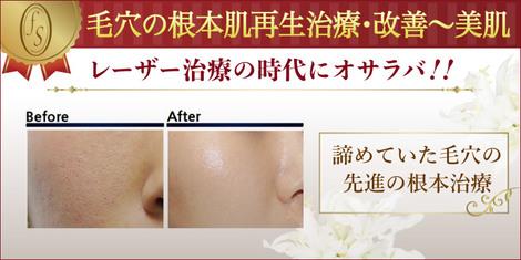 毛穴の根本肌再生治療・改善から美肌へ 諦めていた毛穴の先進の根本治療
