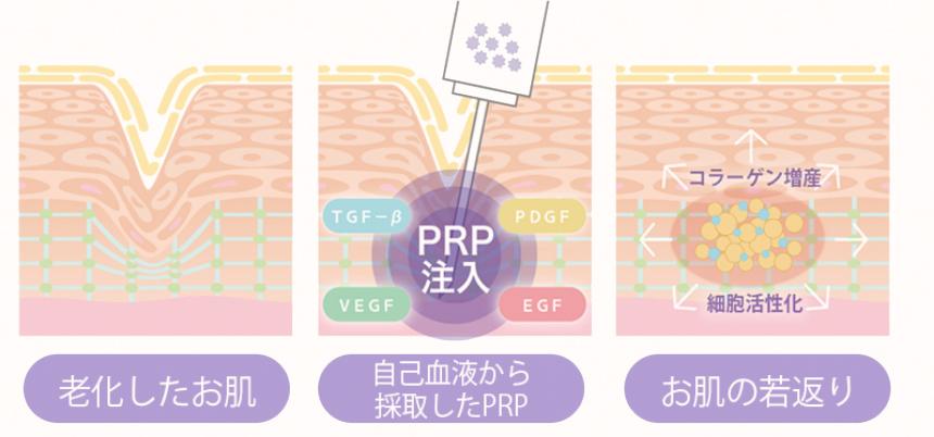 PRP皮膚再生療法のしくみ