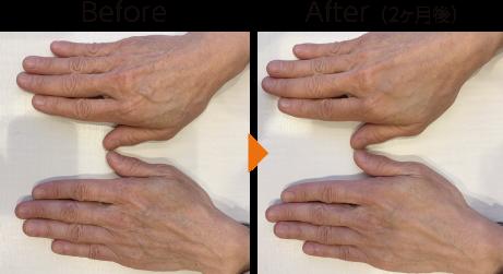手元の肌再生イメージ