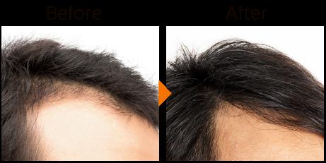 毛髪再生療法イメージ