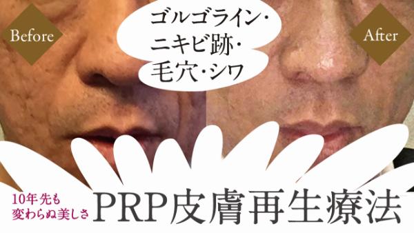 フォーシーズンズのPRP皮膚再生療法について