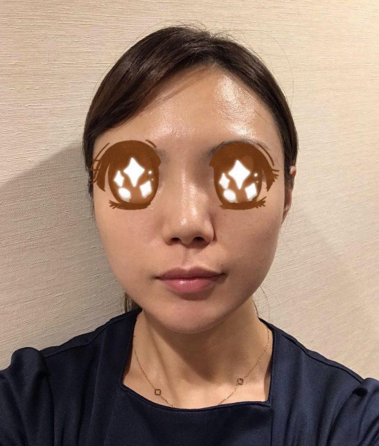 PRP皮膚再生療法スタッフ体験