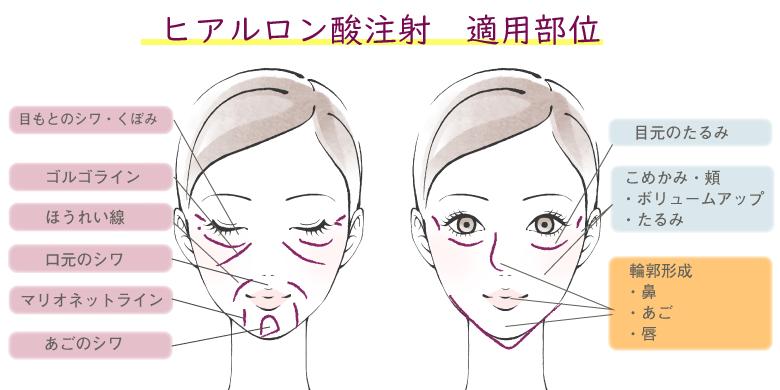 ヒアルロン酸注射の適用部位は、目元のシワ・くぼみ、ゴルゴライン、ほうれい線、口元のシワ、マリオネットワイン、あごのシワ、目元のたるみ、こめかみ・頬のボリュームアップ・たるみ改善、鼻・あご・唇の輪郭形成です。