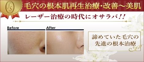 毛穴の根本肌再生治療・改善~美肌