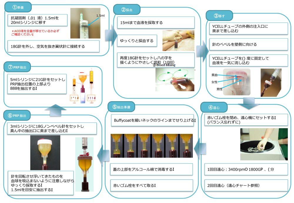 PRP皮膚再生療法 PRP成分抽出の手順