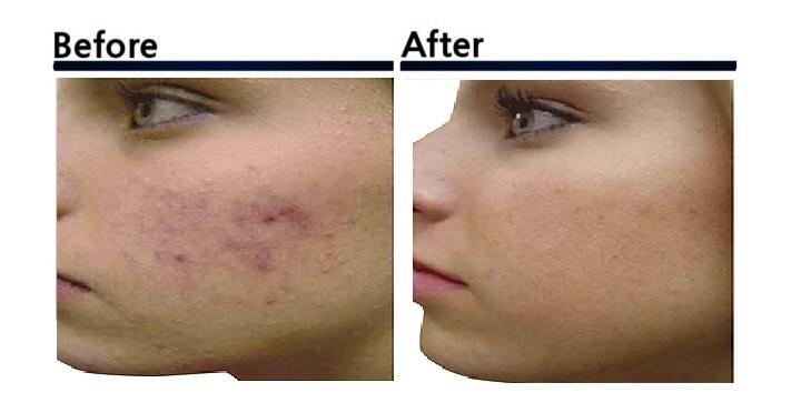 PRP皮膚再生療法 ビフォーアフター