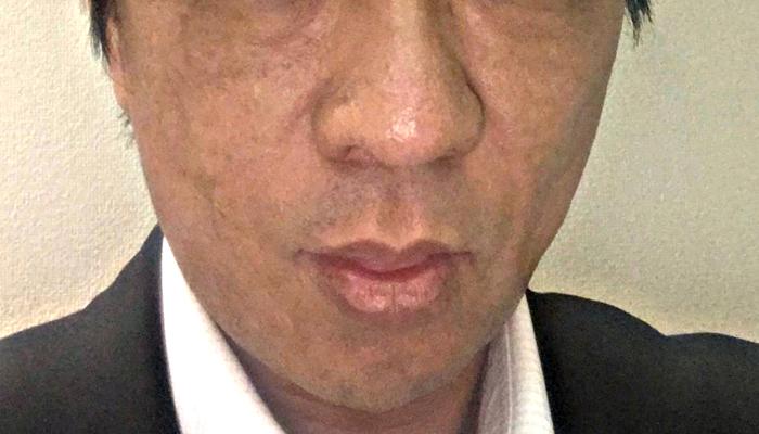 PRP皮膚再生療法 治療後3ヶ月経過後