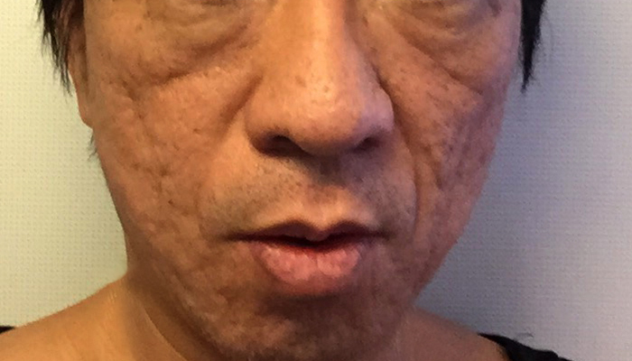 PRP皮膚再生療法 治療前