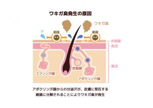 ワキガ臭発生の原因