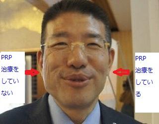 PRP施術のビフォーアフター loading=