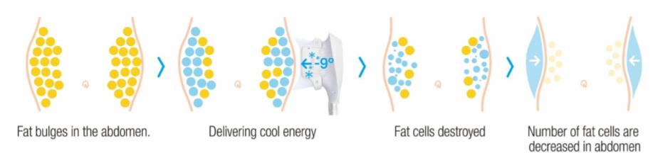 お腹周りの脂肪に冷却エネルギーを届ける → 脂肪細胞が破壊されて減少しスリムに!