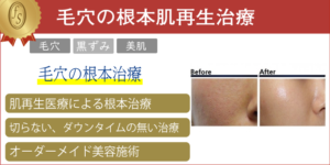 毛穴の根本肌再生治療