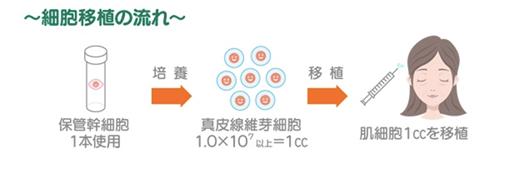 幹細胞の移植イメージ