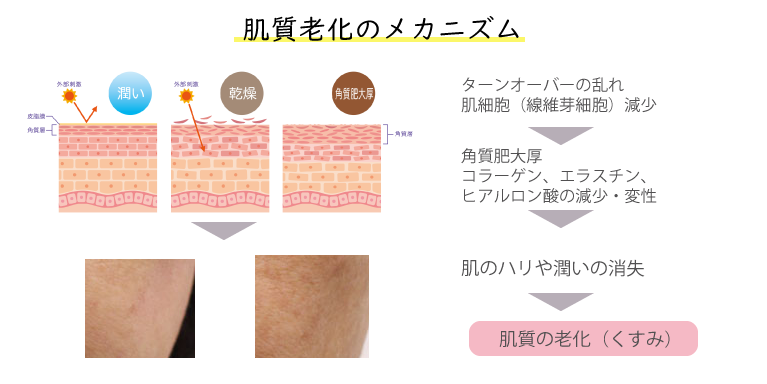 肌質老化のメカニズム