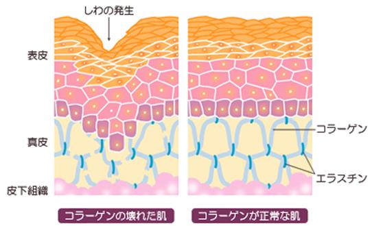 お肌のコラーゲンとシワの関係図