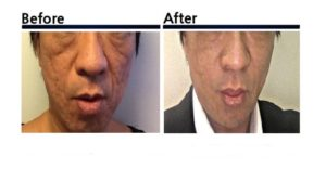 PRP水光注射皮膚再生療法+ダーマペン+BellaVita(水光注射)ビフォーアフター