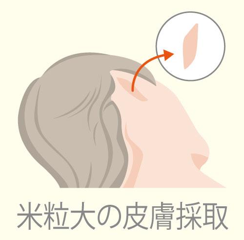 皮膚採取のイメージ