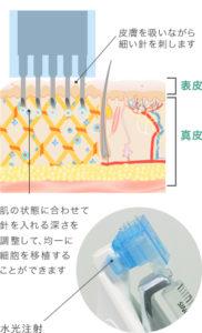 水光注射の効果イメージ