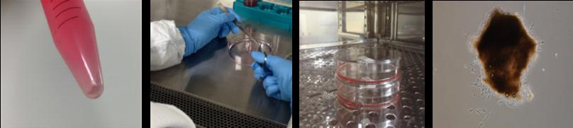 幹細胞治療の細胞培養イメージ