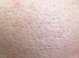クレーター肌のイメージ