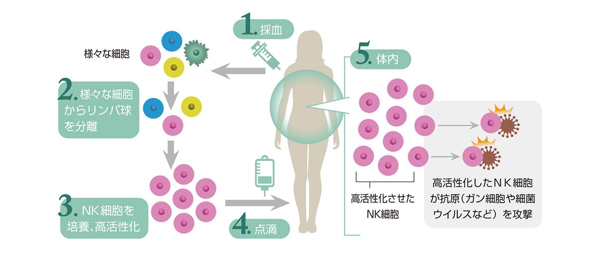 当院のNK細胞療法の施術内容について