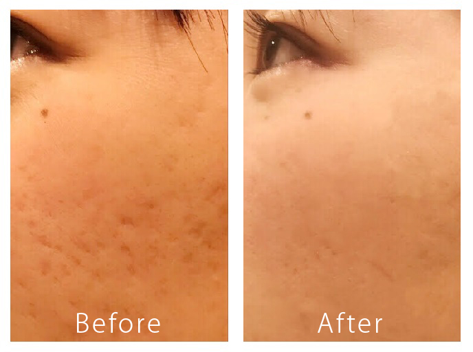 PRP皮膚再生療法②