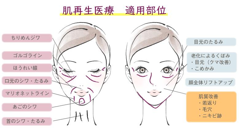 肌再生医療の適用部位