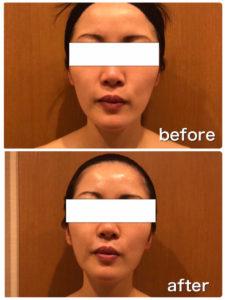 肌再生エステ症例写真
