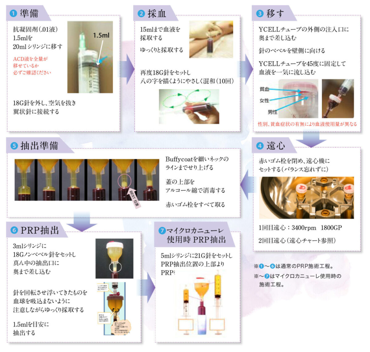PRP血漿説明図