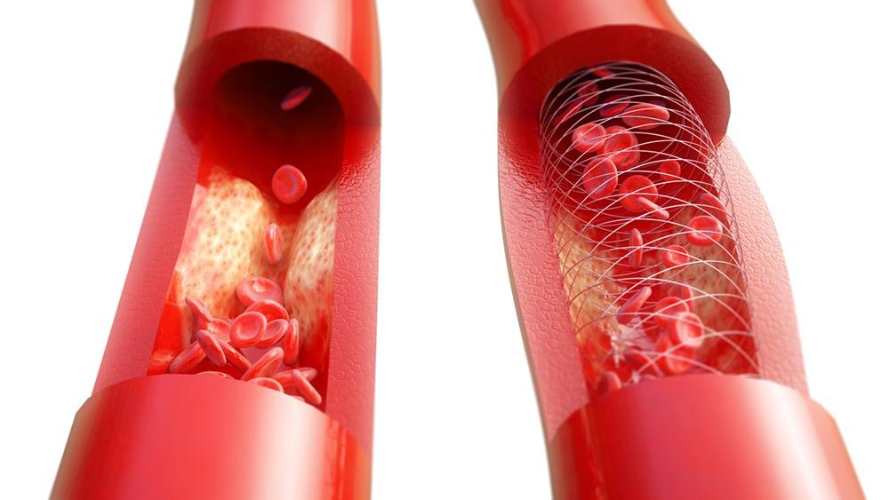 血管イメージ画像