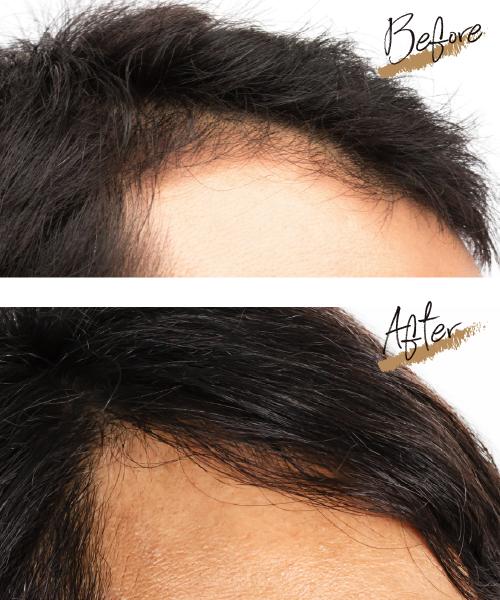 毛髪ビフォーアフターimage