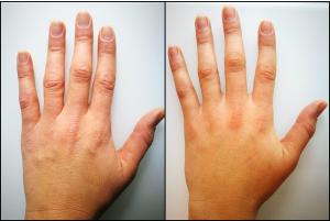 ミラノリピール3回施術後手指