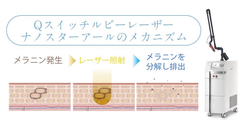 Qスイッチレーザー NanoStarRイメージ
